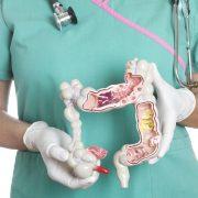 vastagbél daganat szűrés széklet tesztekkel